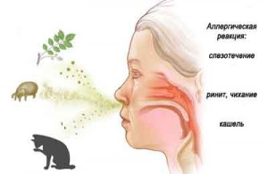 возбудители аллергического кашля