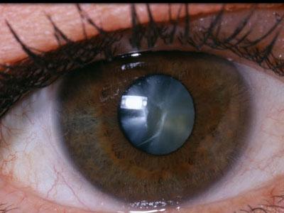 помутнение хрусталика, катаракта