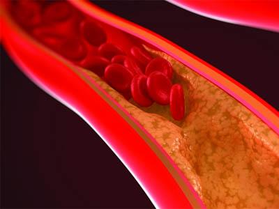 Варианты лечения кальциноза сосудов народными средствами