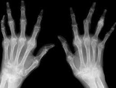 рентген рук