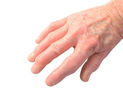 рука, суставы, артрит