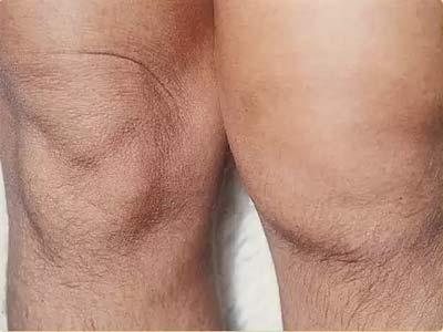 колени, артрит