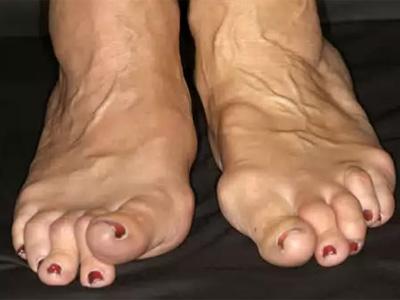 Лечение артрита стопы народными средствами