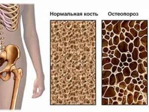 Нормальная кость, остеопороз