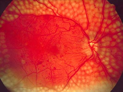Диабетическая ретинопатия и ее лечение народными средствами