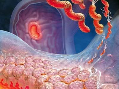 Воспаление желудка, бактерии