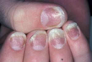 Как быстро вылечить грибок между пальцами ног