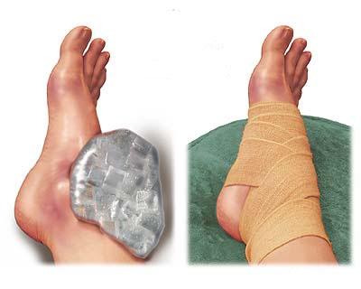 лечение связок колена народными средствами
