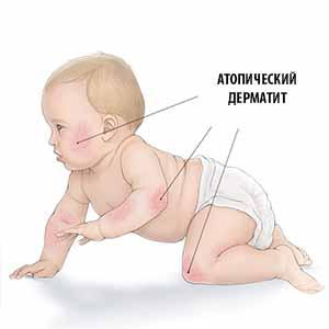 atopicheskij-dermatit-u-mladenca