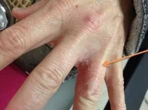 dermatit-mezhdu-palcev