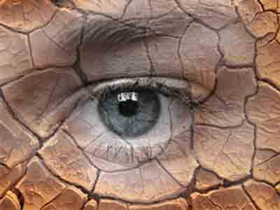 Сухой глаз
