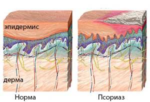 норма и псориаз