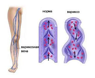 Как лечить варикоз вен на ногах в домашних условиях