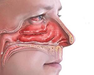 отек слизистых носа