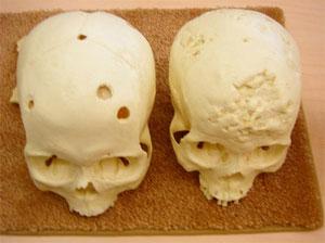 сифилис поражает кости