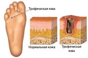 повреждение кожи