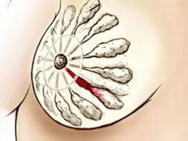 Как лечить лактостаз народными средствами