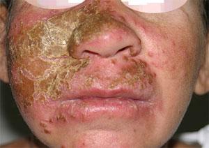 поражение кожи лица