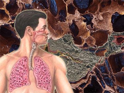 фиброз и пневмофиброз
