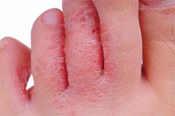 кандидоз между пальцами