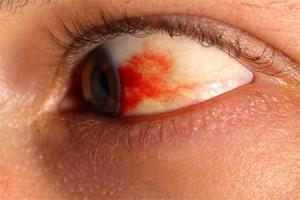 глаз, красное пятно