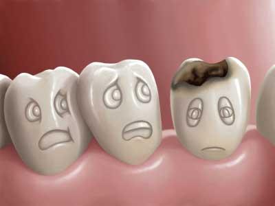 кариес, зубы