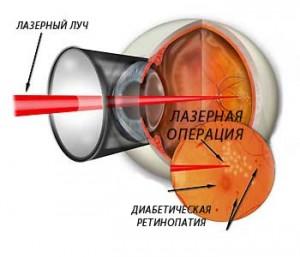 лазерная операция