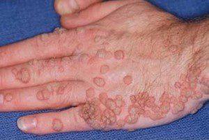 папилломы на руке