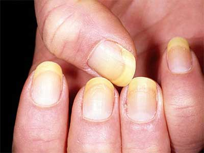 желтушность ногтей