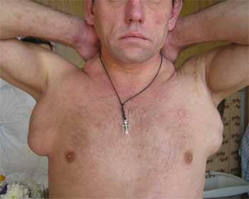 подмышечные лимфоузлы увеличены