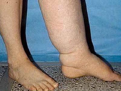 Лимфостаз левой ноги