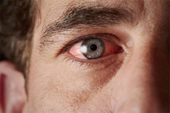саркоидоз глаз