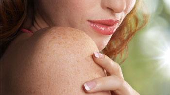 Гемосидероз кожи
