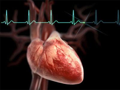сердце, кардиограмма