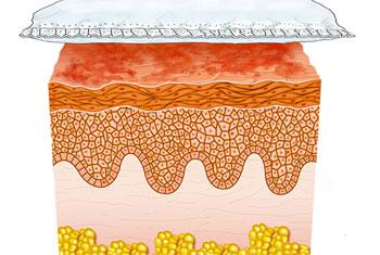 дерматит под памперсом