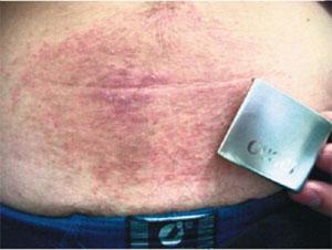 аллергия на никель