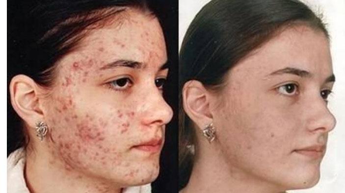 демодекоз до лечения и после