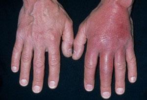 воспаление руки