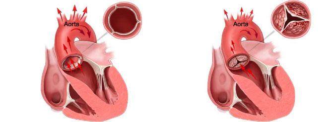 сердце, аортальный клапан