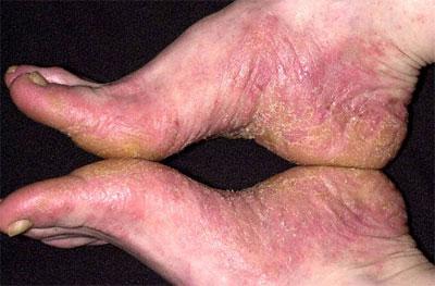 сухой дерматит стоп