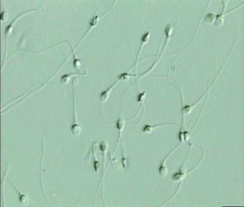 спермии