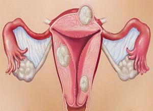 фибромиомы матки