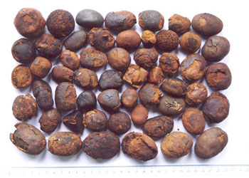 различные желчные камни