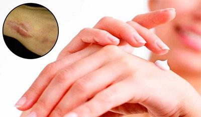 лечение мазями
