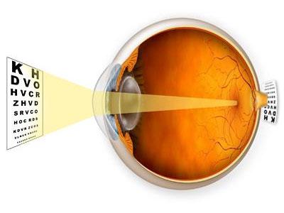 Сколько стоит операция астигматизма на один глаз
