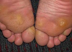 подошвенные натоптыши на ступнях