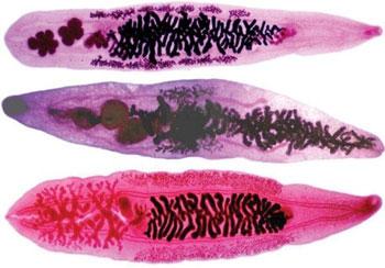 описторхи под микроскопом