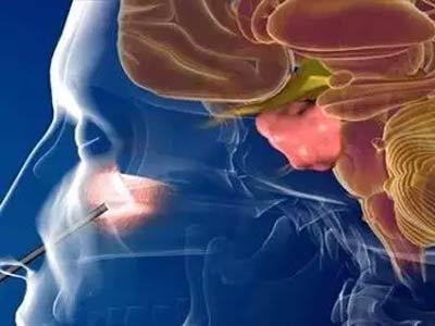 очаг воспаления в гайморовой полости