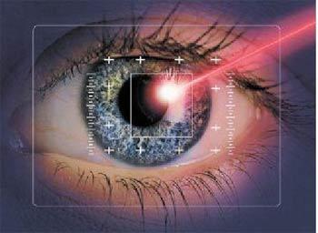 лазерный луч, лечение глаза