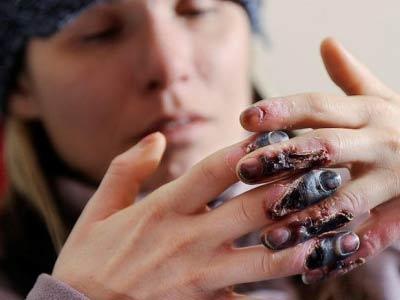 отмороженные пальцы